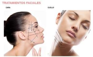 Los hilos se insertan con aguja especial debajo la piel, siguiendo la dirección de la expresión facial, es inodoro, o en algún caso se requeriría de anestesia local. Se reabsorbe en aproximadamente un año. El resultado es instantáneo debido al retensado del hilo y continuara mejorando progresivamente